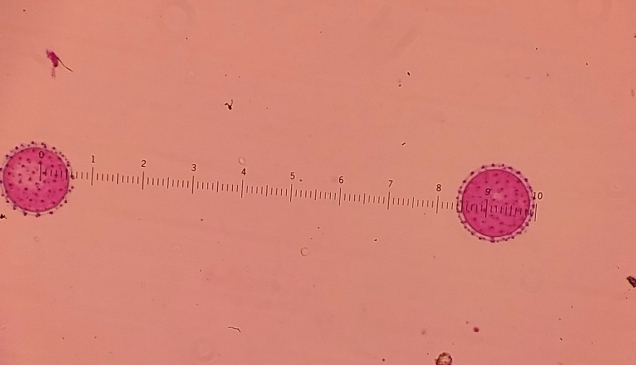 And a final random ground vegetation pollen . This one is really cool